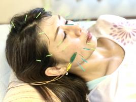 メニュー:顔パッチリ美容鍼+全身しんきゅう イメージ